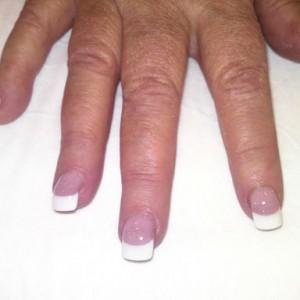 nail biter after acrylic nails