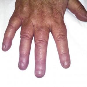 nail biter before acrylic nails